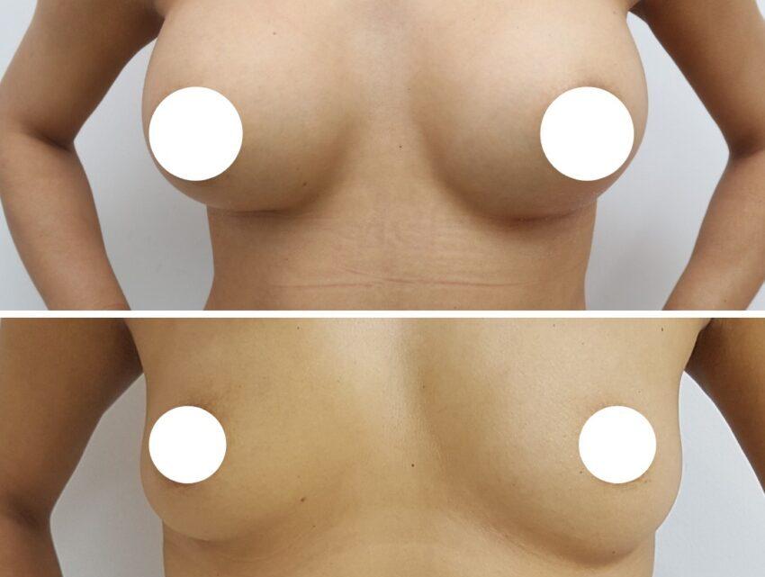 Augmentarea mamară, o operaţie vedetă